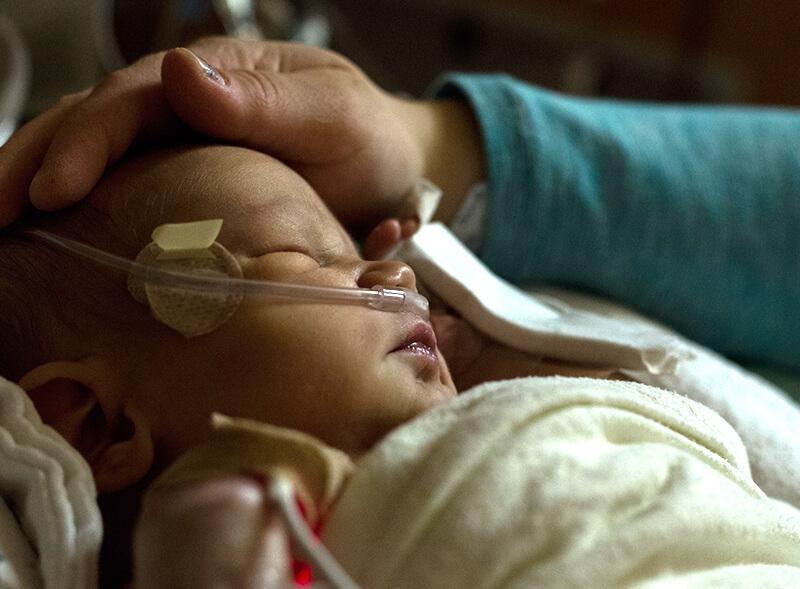 Fondation En Coeur - Bébé sous aide respiratoire se faisant consoler
